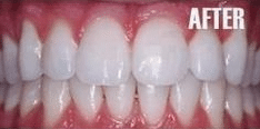 dental teeth whitening after picture shows whiter teeth in Calgary