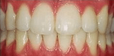 dental teeth whitening before picture shows how to get whiter teeth in Calgary